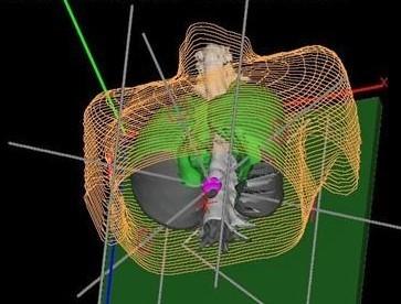 适形放射治疗计划系统(TPS)